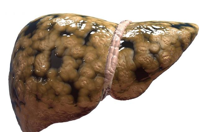 Жировая болезнь печени