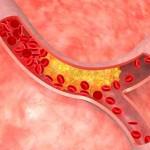 изображение кровеносного сосуда, пораженного атеросклерозом