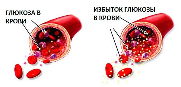 Растворимый цикорий - лечебные свойства и противопоказания