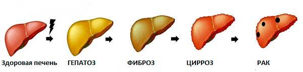 схема перерастания жировой болезни печени в цирроз