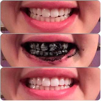 зубы, отбеленные углем