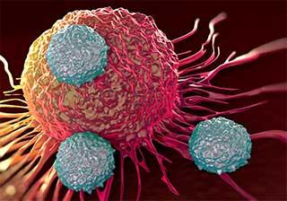 клетка раковой опухоли
