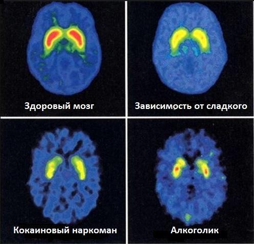 Сравнение мозговой активноти у наркоманов, алкоголиков и людей с зависимостью от сладкого