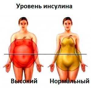 схематическое изображение ожирения при повышенном инсулине