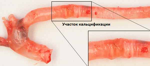 кальцифицтрованные кровеносные сосуды