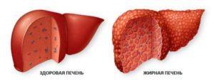 изображение здоровой и ожиревшей печени