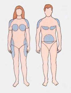 схема распределения жира по телу у женщин и у мужчин